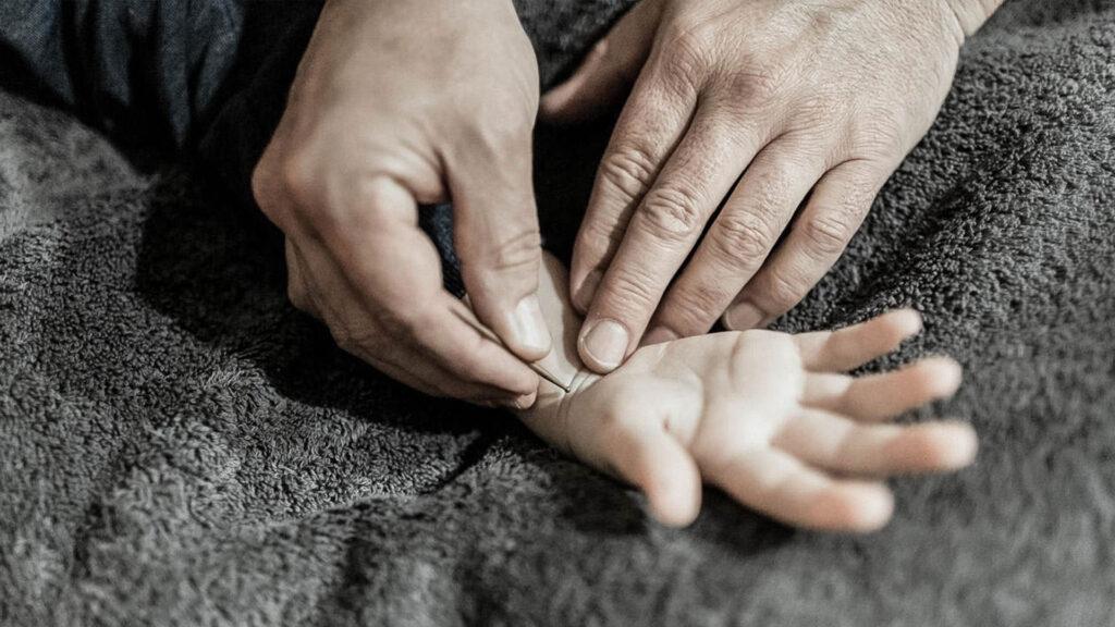 Shonishin - Behandlung für Kinder - HOB Zürich